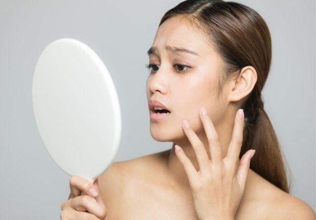Las manchas en la cara aparecen tras un exceso de protección al sol